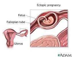 Fetus within fallopian tube