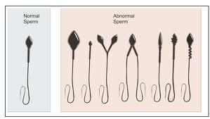 abnormal sperm