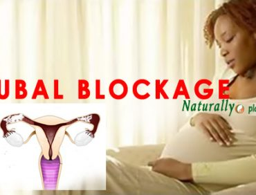 TUBAL BLOCKAGE TESTIMONY: HER BLOCKED TUBES FINALLY OPENED NATURALLY