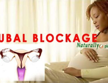 TUBAL BLOCKAGE TESTIMONY: HER BLOCKED TUBES FINALLY OPENEDNATURALLY