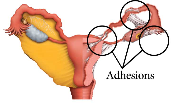 Intrauterine Adhesion/Asherman's Syndrome