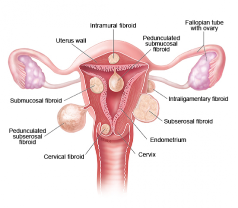 EFFECTIVE HERBAL/NATURAL REMEDY FOR FIBROID IN NIGERIA
