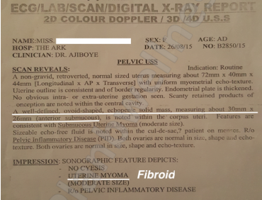 NO FIBROID: Scan Confirms No Fibroid After Treatment