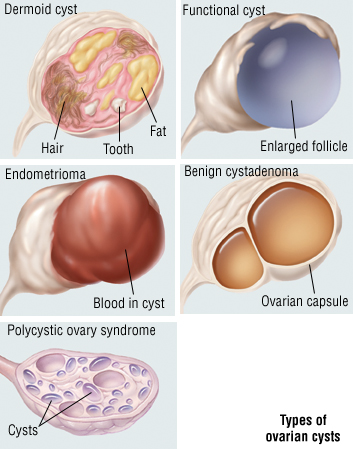 types of ovarian cyst