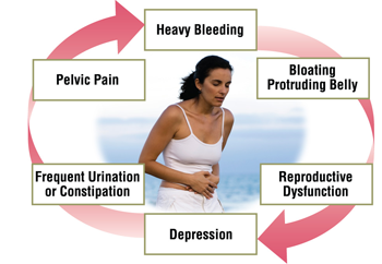 SYMPTOMS OF UTERINE FIBROIDS