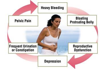 SYMPTOMS OF UTERINE FIBROIDS