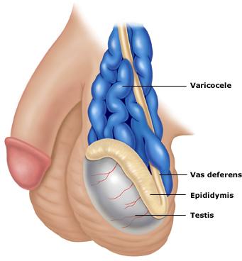 Varicoceles