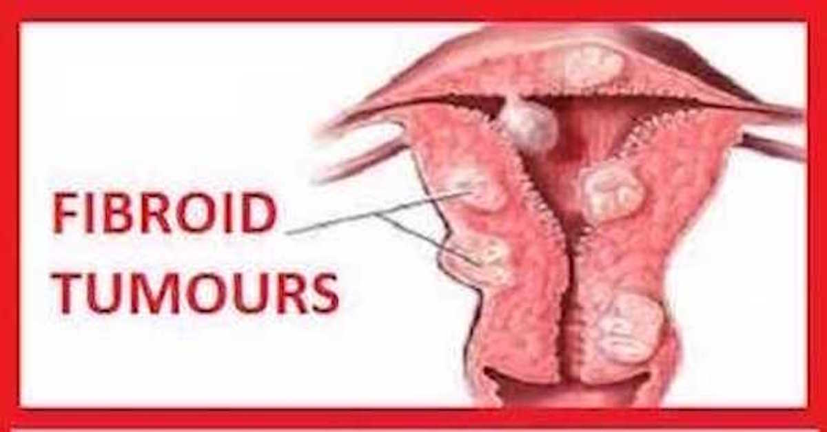 UTERINE FIBROID: CAUSES, SYMPTOMS AND NATURAL REMEDY