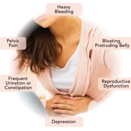Fibroid symptoms