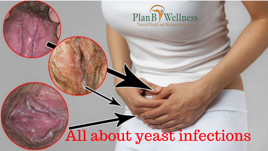 ALL ABOUT YEAST INFECTIONS