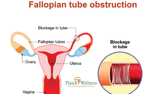 HOW DOES FALLOPIAN TUBE BLOCKAGE AFFECTS FEMALE FERTILITY