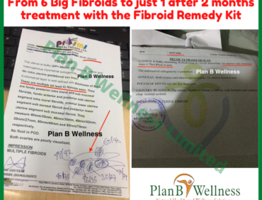 From 6 Big Fibroids to 1 after 2 months of Treatment – Scan Reports Inside
