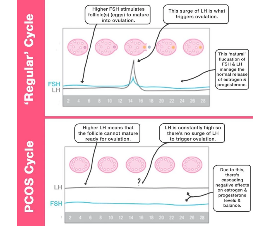 How PCOS Affects the Menstrual Cycle